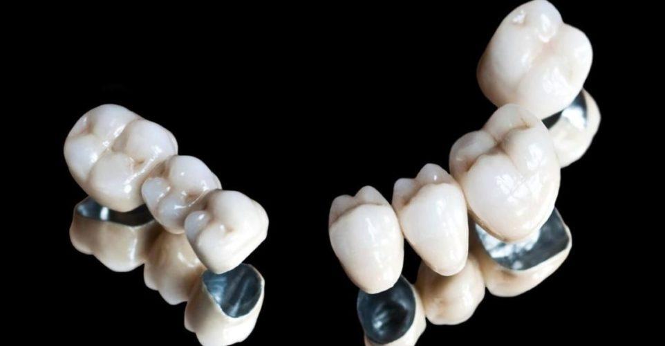Особенности и разновидности зубных коронок